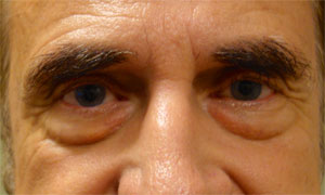Lower eyelid blepheroplasty patient before pic front view