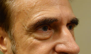 Lower eyelid blepheroplasty patient before pic side view