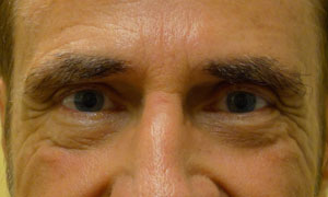Lower eyelid blepheroplasty patient after pic front view