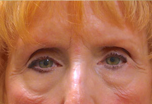 Ptosis Surgery Before Patient 5 After Front Angle Dr. Joseph Inland Empire