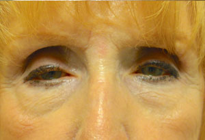 Ptosis Surgery Before Patient 5 Front Angle Dr. Joseph Inland Empire