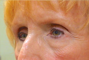 Ptosis Surgery After Patient 5 Side Angle Dr. Joseph Inland Empire