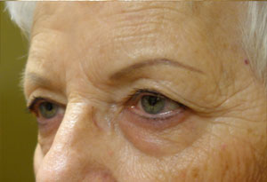 Ptosis Surgery Before Patient 5 After Side Angle Dr. Joseph Inland Empire
