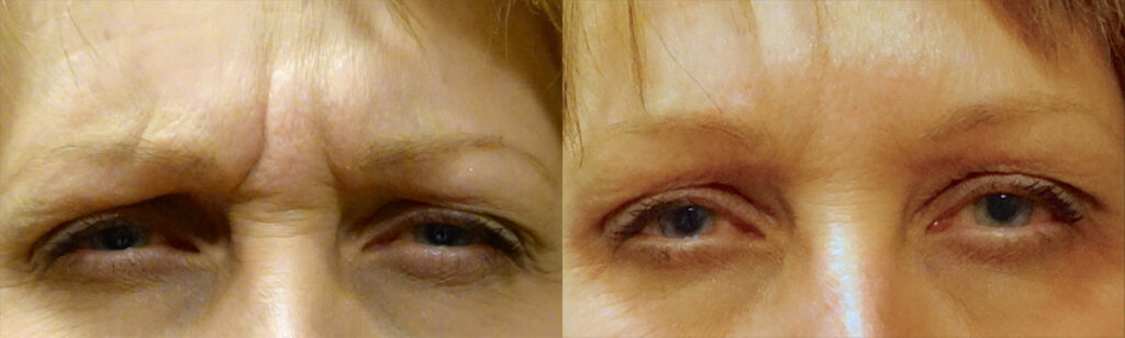 Injectable Filler Patient-5