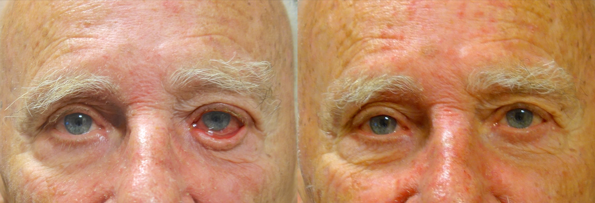Entropion Before and After Photo Gallery Patient 4 Front Angle Dr. Joseph Infocus Inland Empire