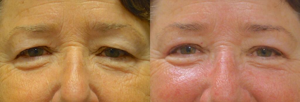 Upper Eyelid Patient-10