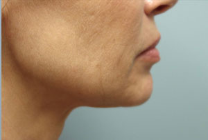 Non Surgical Facelift After Photo Gallery Lower Side Angle Dr. Joseph Infocus Inland Empire