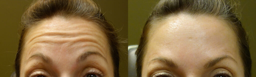 Injectable Filler Patient-6