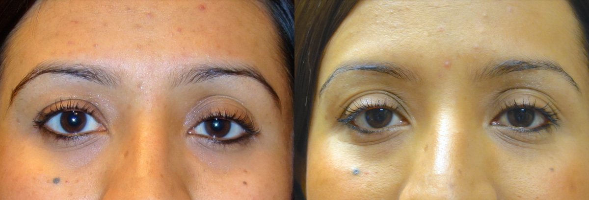 Ptosis Surgery Before and After Patient 5 Front Angle Dr. Joseph Inland Empire