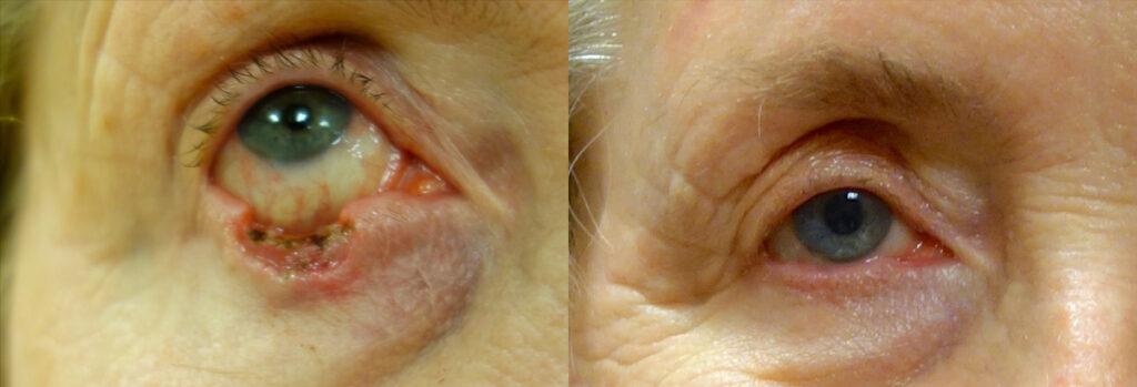 Eyelid Skin Cancer Patient-9