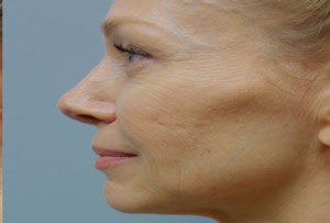 Non Surgical Facelift After Photo Gallery Side Angle Dr. Joseph Infocus Inland Empire