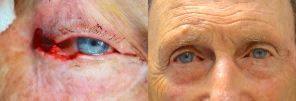 Eyelid Skin Cancer Patient-10