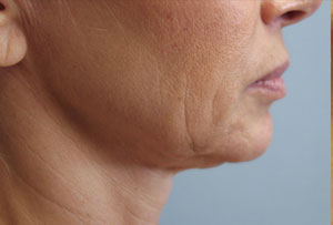 Non Surgical Facelift Before Photo Gallery Lower Side Angle Dr. Joseph Infocus Inland Empire