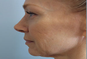 Non Surgical Facelift Before Photo Gallery Side Angle Dr. Joseph Infocus Inland Empire