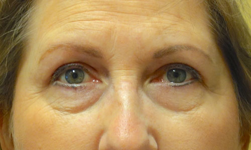 upper eyelid blepharoplasty patient after pic front view