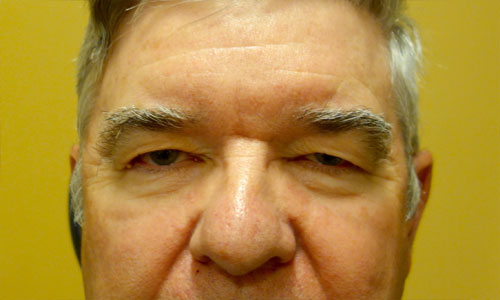upper eyelid blepharoplasty patient before pic front view