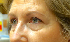 upper eyelid blepharoplasty patient after pic side view