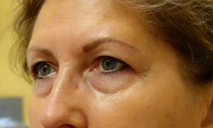 upper eyelid blepharoplasty patient before pic side view