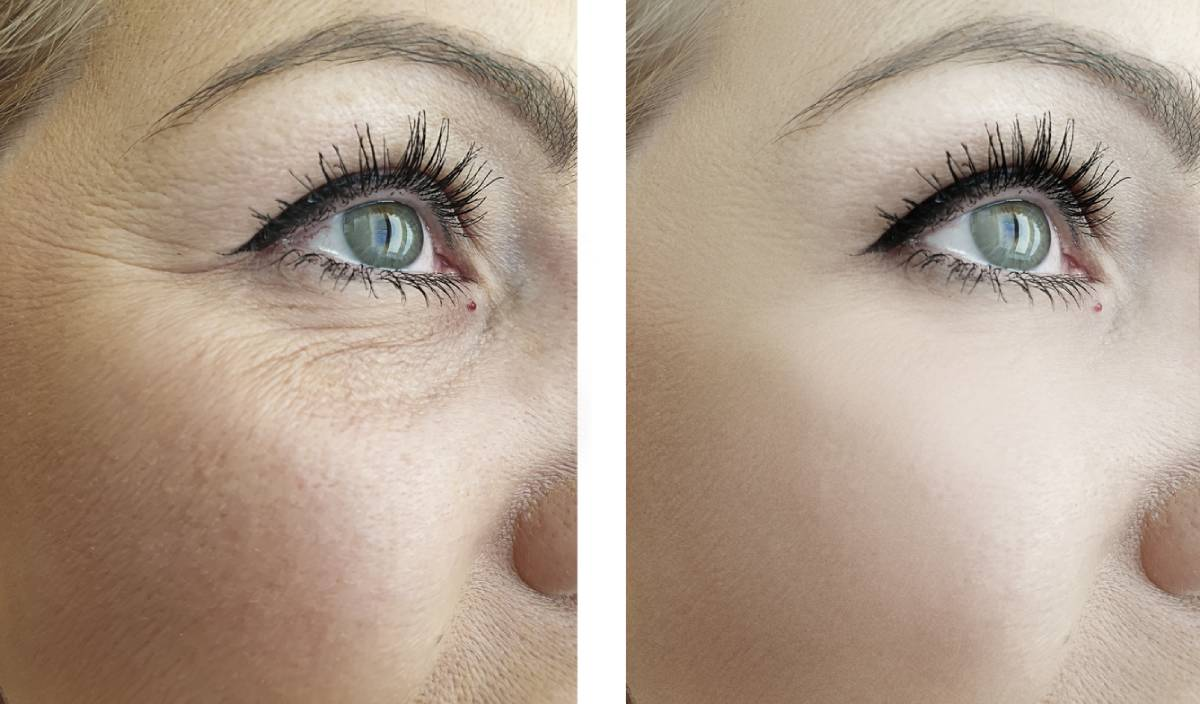 Before and after circle treatment